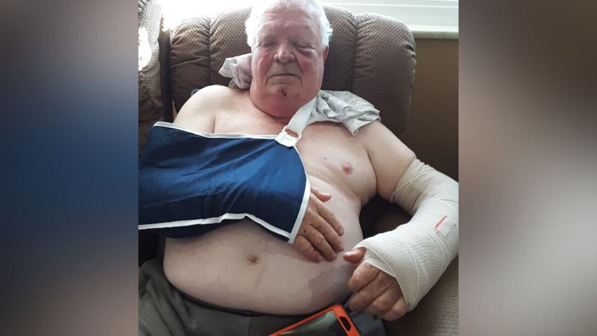 69-year-old Randy Williams suffers from a  dislocated shoulder, a broken wrist and a bruised face. / Source: WVLT News