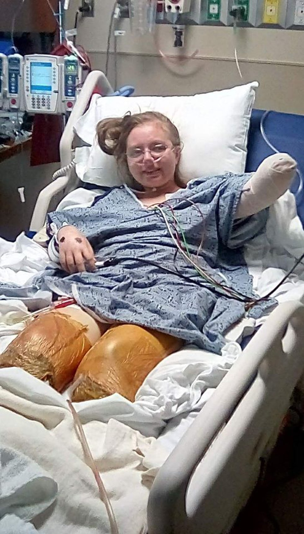 Jessica Thoma after her triple amputation.