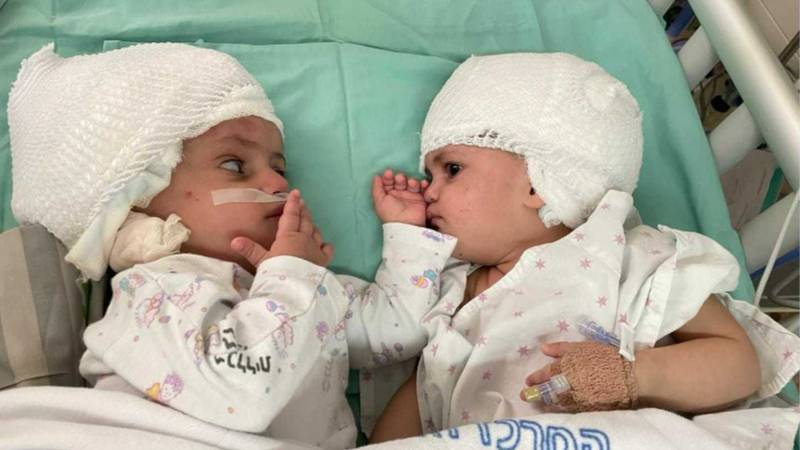 The 1-year-old twins, whose names were not released, are expected to make a full recovery from...
