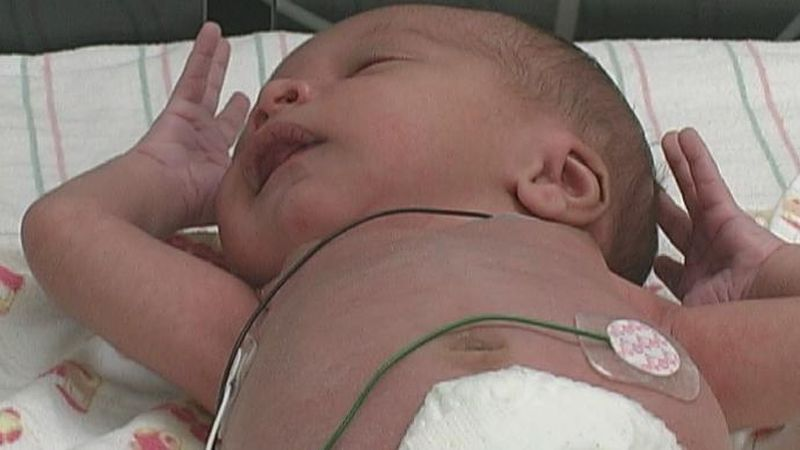 East Tennessee Children's Hospital studies babies born addicted to drugs. / Source: (WVLT)